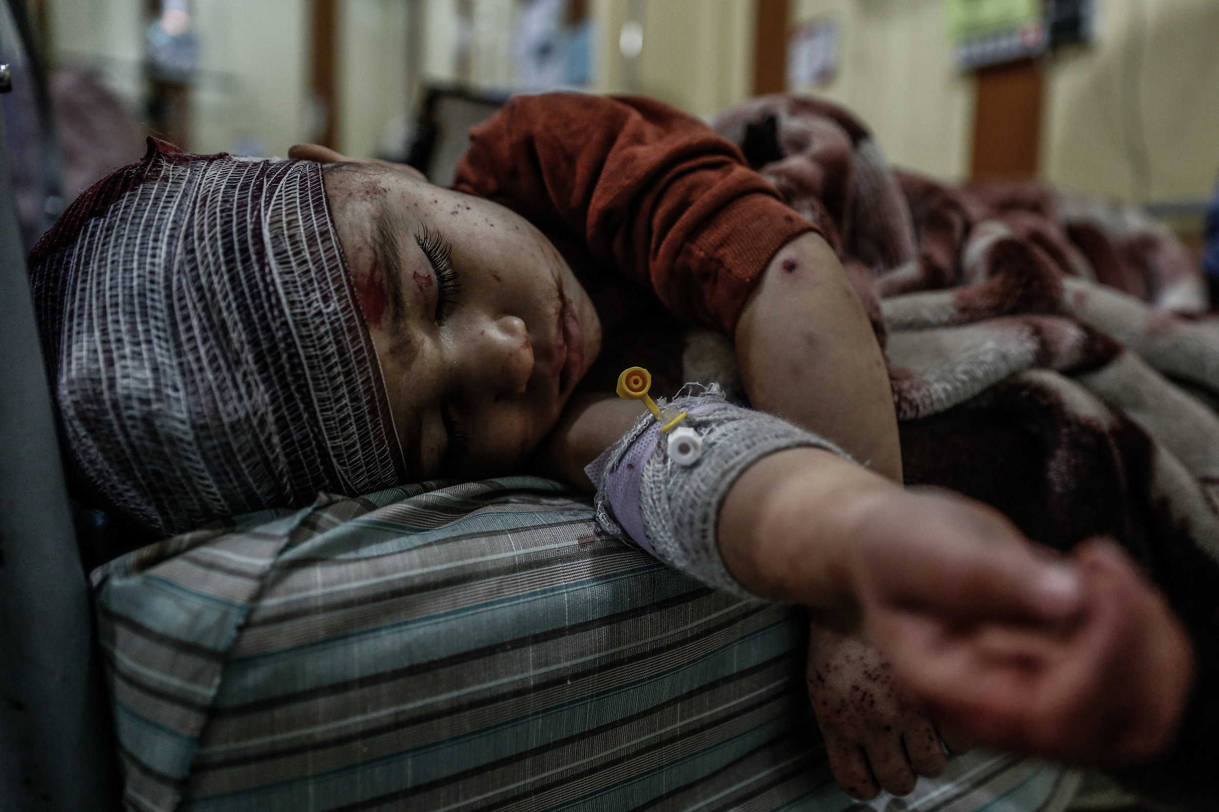 - A boy lies in a hospital bed after he was injured following air strikes by Syrian government forces on the rebel-held area of Douma, east of the capital Damascus, on February 26, 2016.