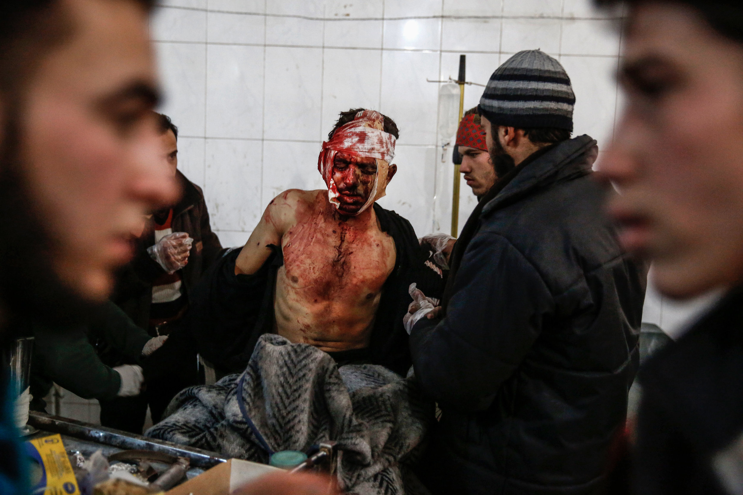- A man wounded in an air strike by Syrian government forces on Hammuriyeh receives treatment at an underground field hospital on December 24, 2015.