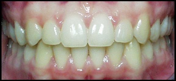 lori-smith-orthodontics_a-good-bite.png
