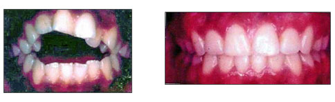 lori-smith-orthodontics_openbite.jpg