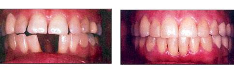 lori-smith-orthodontics_spacing.jpg