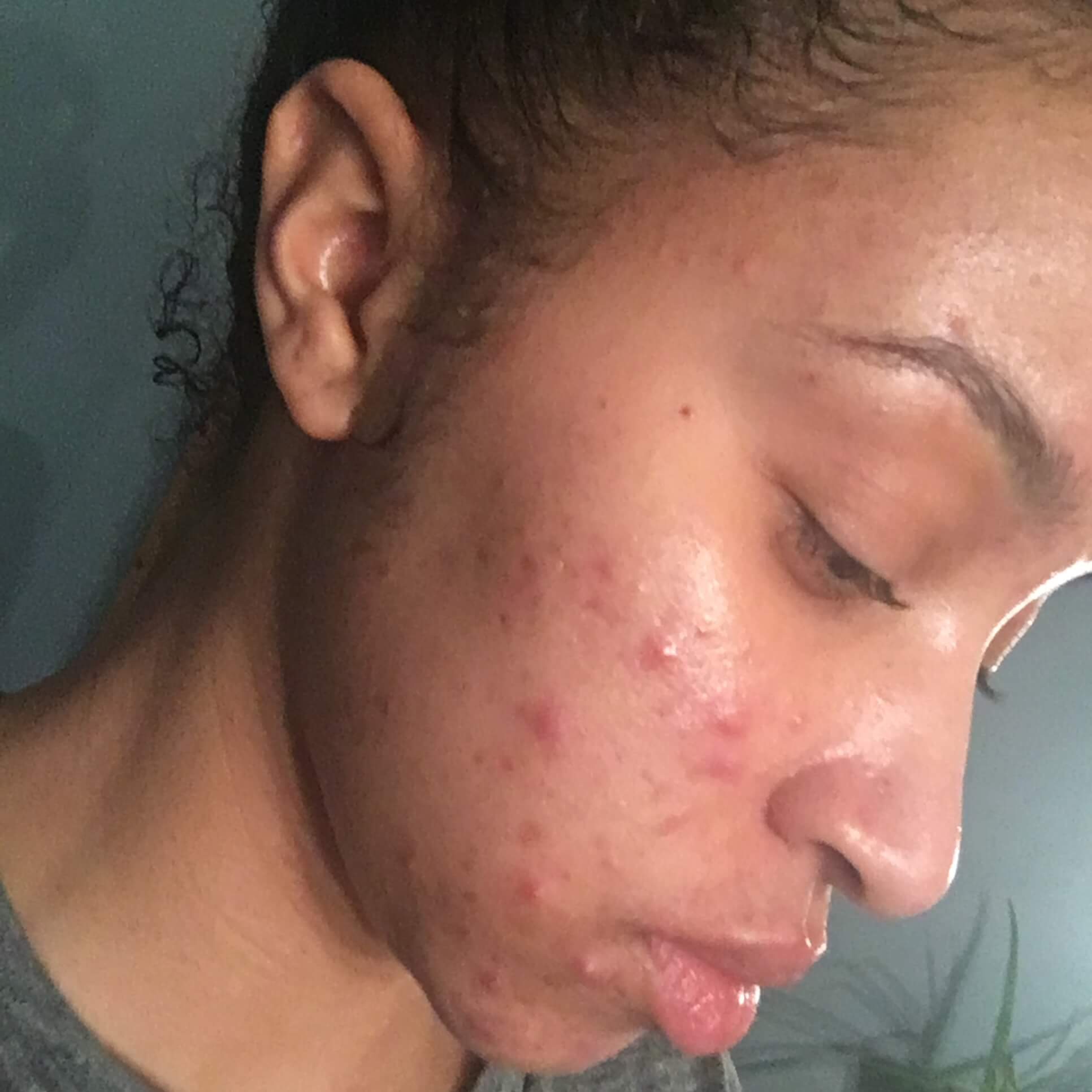Right side of my face before Accutane, November 2016