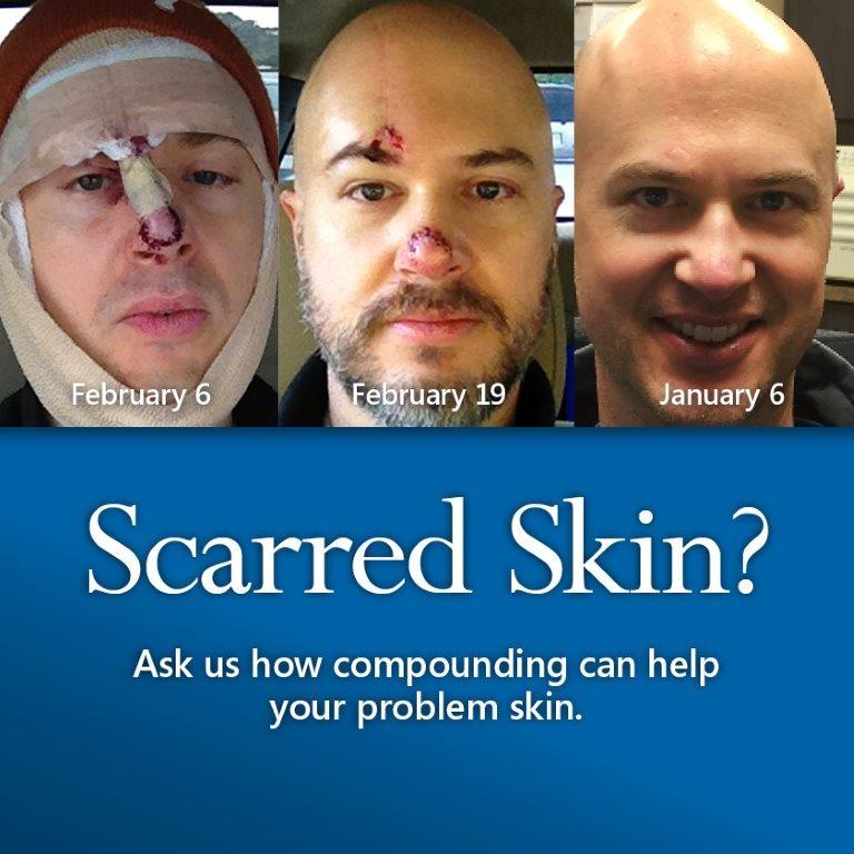 Scar Solutions 2.jpg