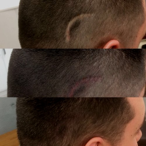Three stage photo before and after treatments of scar tissue