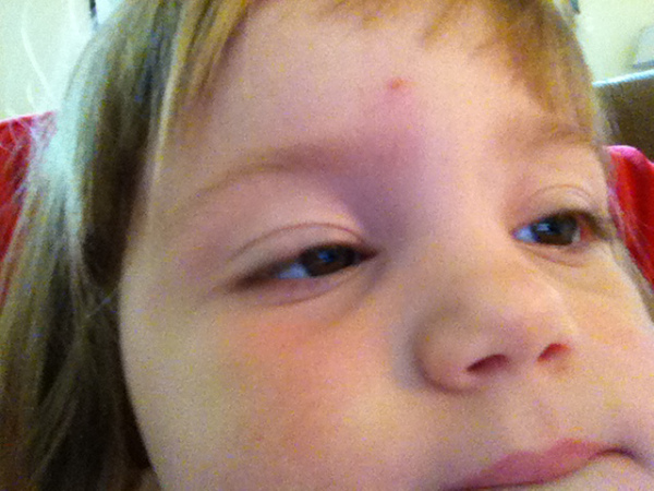 Cute face, now swollen. Stupid bugs.