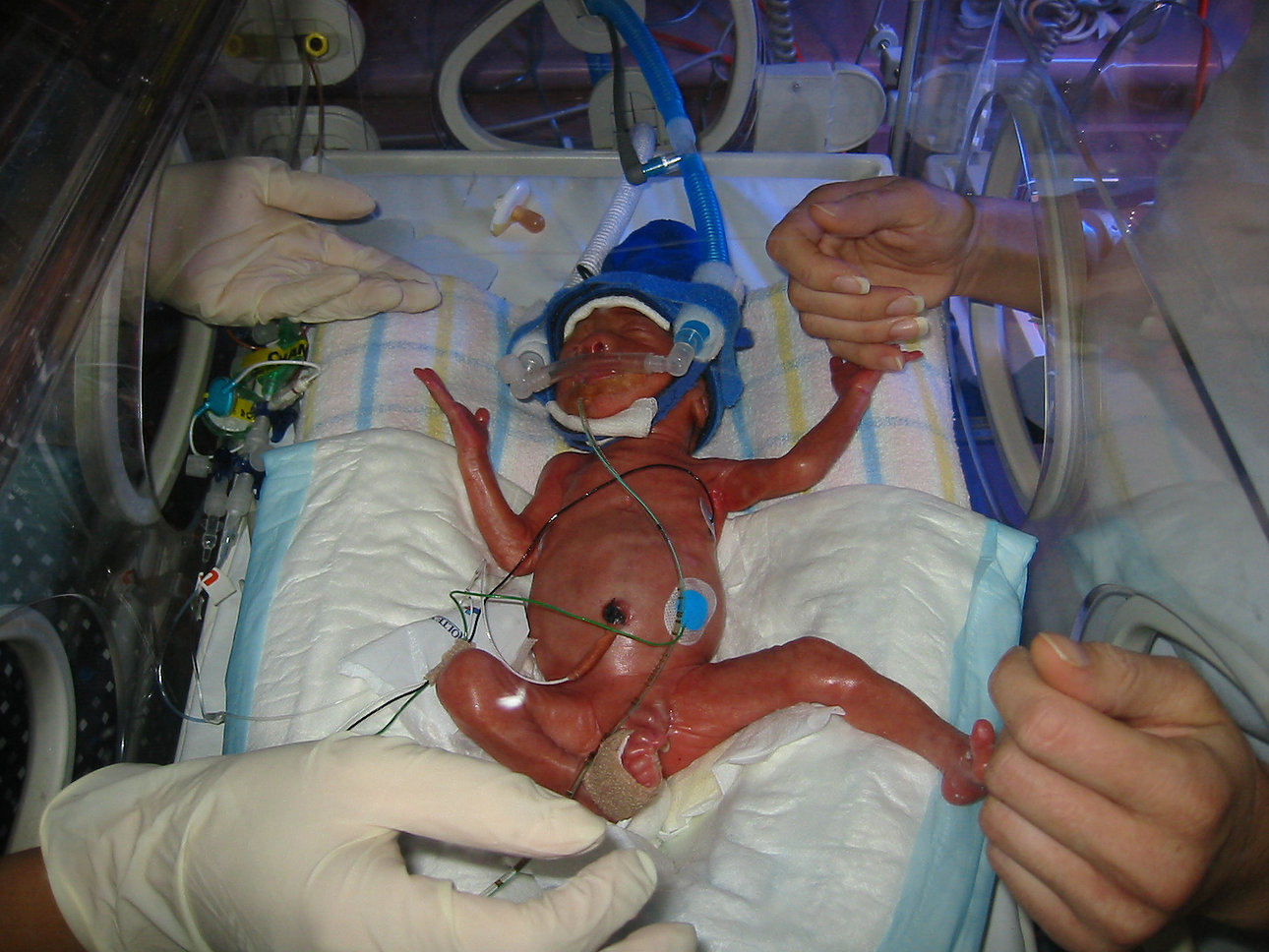 Clamping the umbilical cord later saves preterm babies' lives.