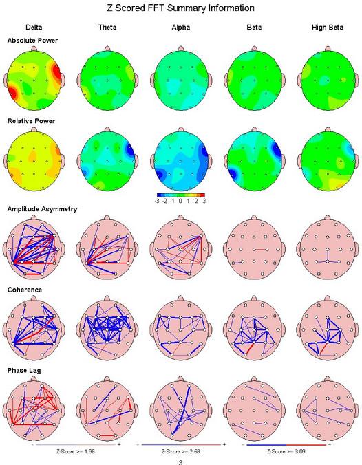 Sample qEEG brain map.