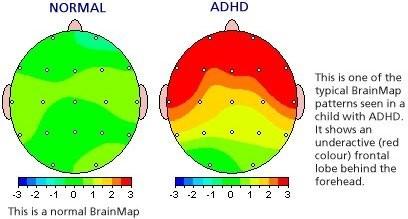 What ADHD looks like in the brain.