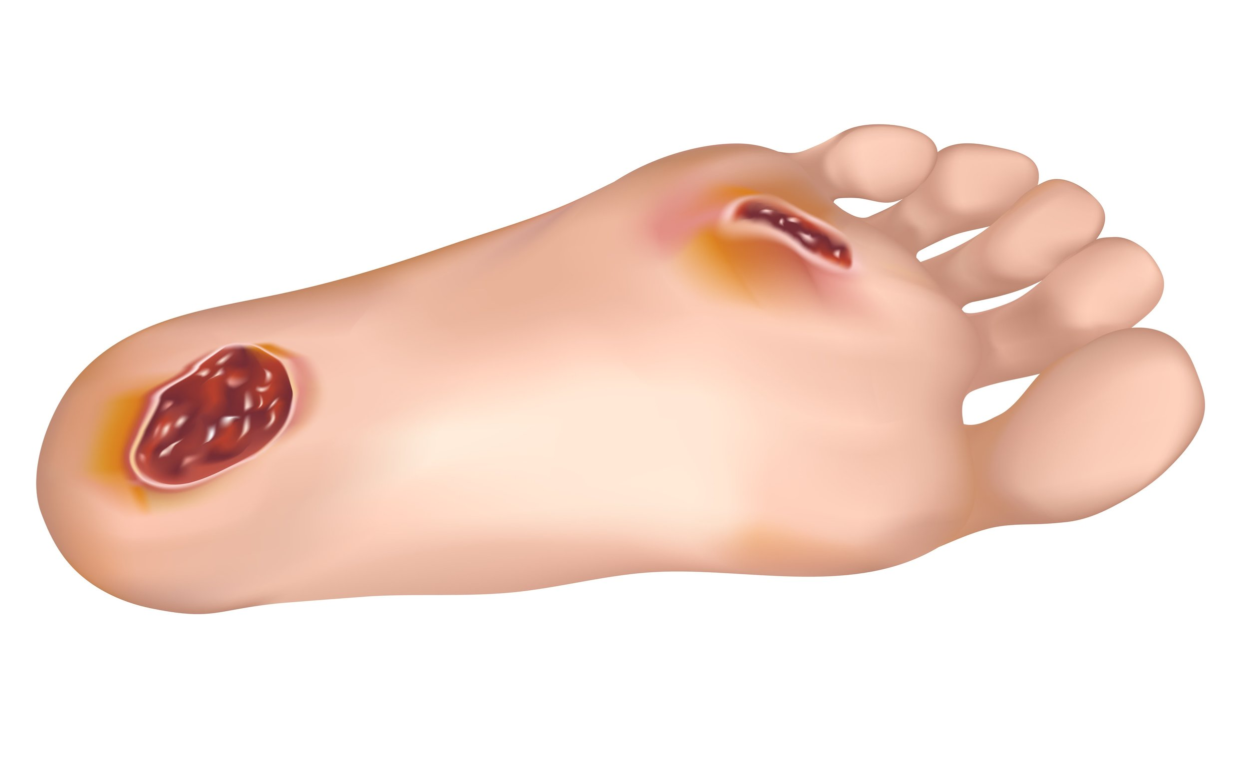 wound care expert dr. burton katzen treats foot ulcers in temple hills and clinton, md