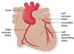 thi-coronary-arteries-250x183.jpg