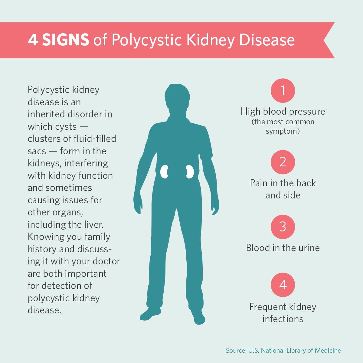 - Symptoms of Polycystic Kidney Disease →