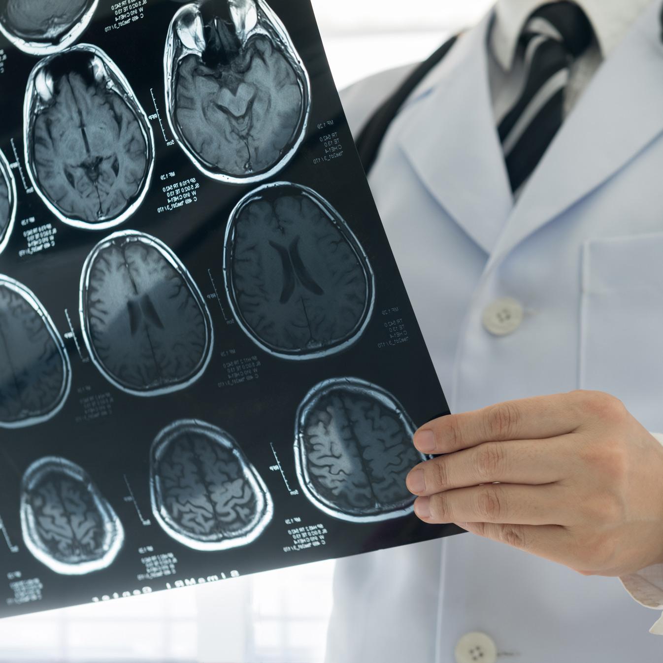 Study, new technique help personalize acoustic neuroma surgery decision -