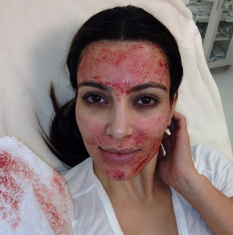 Vampire Facelift - Kim Kardashian