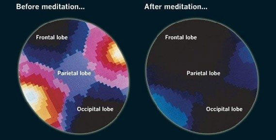Before meditation, your brain is buzzing like a bee aka very active.  After meditation, your brain is less active which means more focused, resilient to face any challenges.