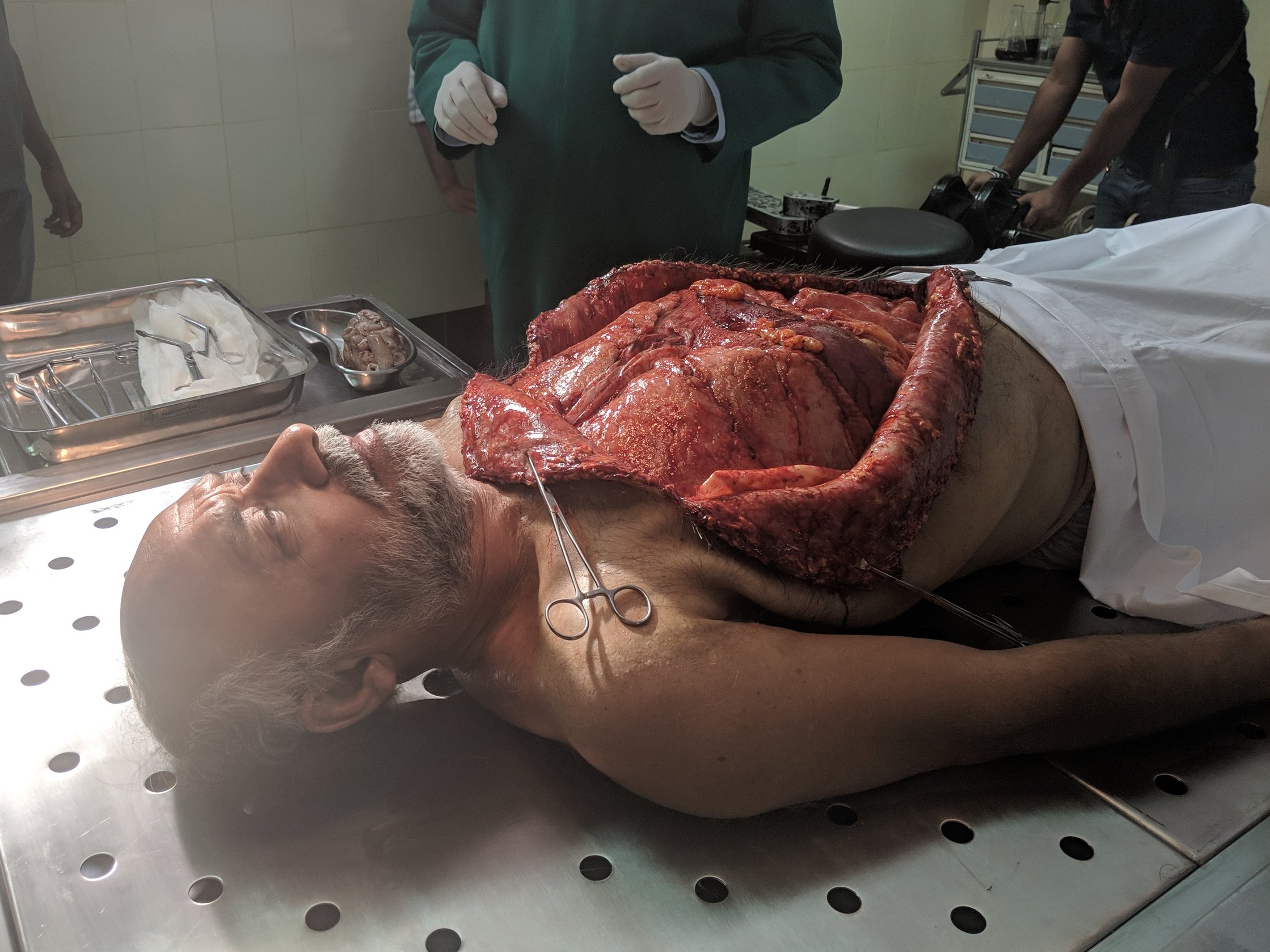 autopsy+prosthetic.jpg