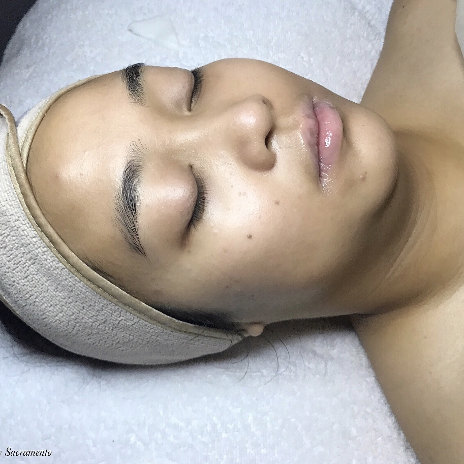 Micro peels - Our most booked and desired treatment! Includes both a diamond tip microdermabrasion coupled with an enzyme or chemical peel to achieve the skin you've always dreamed of. The use of both modalities in one session gives the skin a perfect mix of exfoliation, hydration, and defense against signs of aging.
