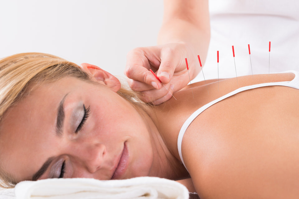 Neurotherapy Acupuncture.jpg