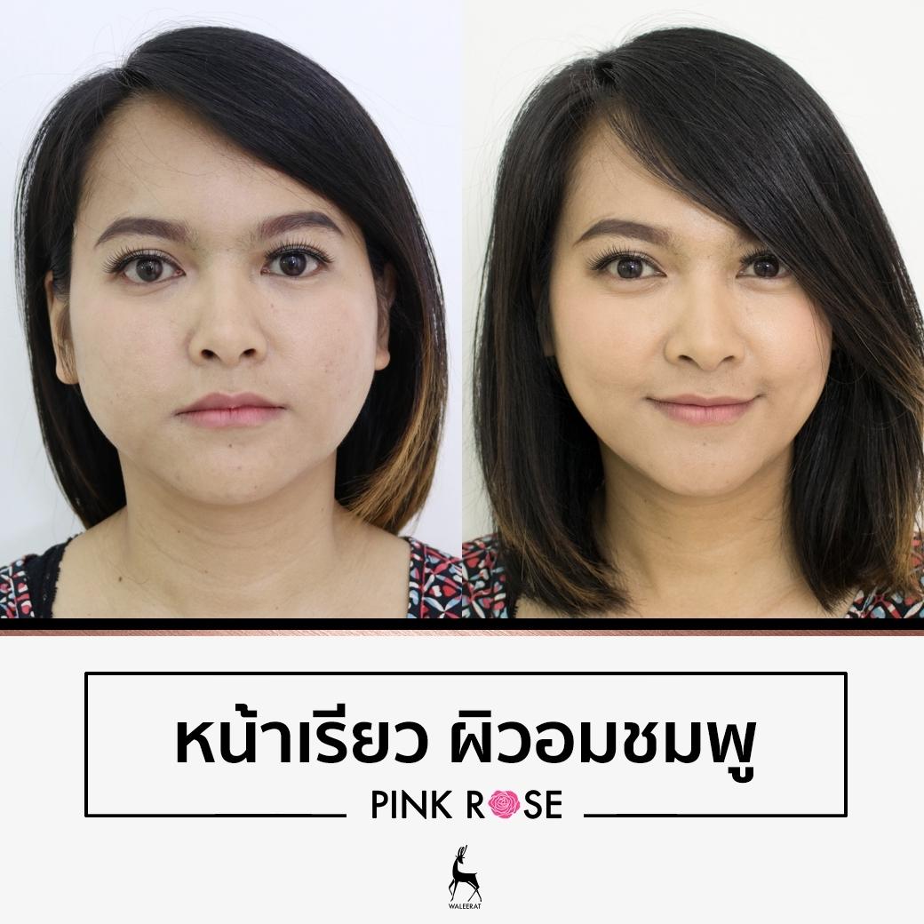 befor-after pinkrose