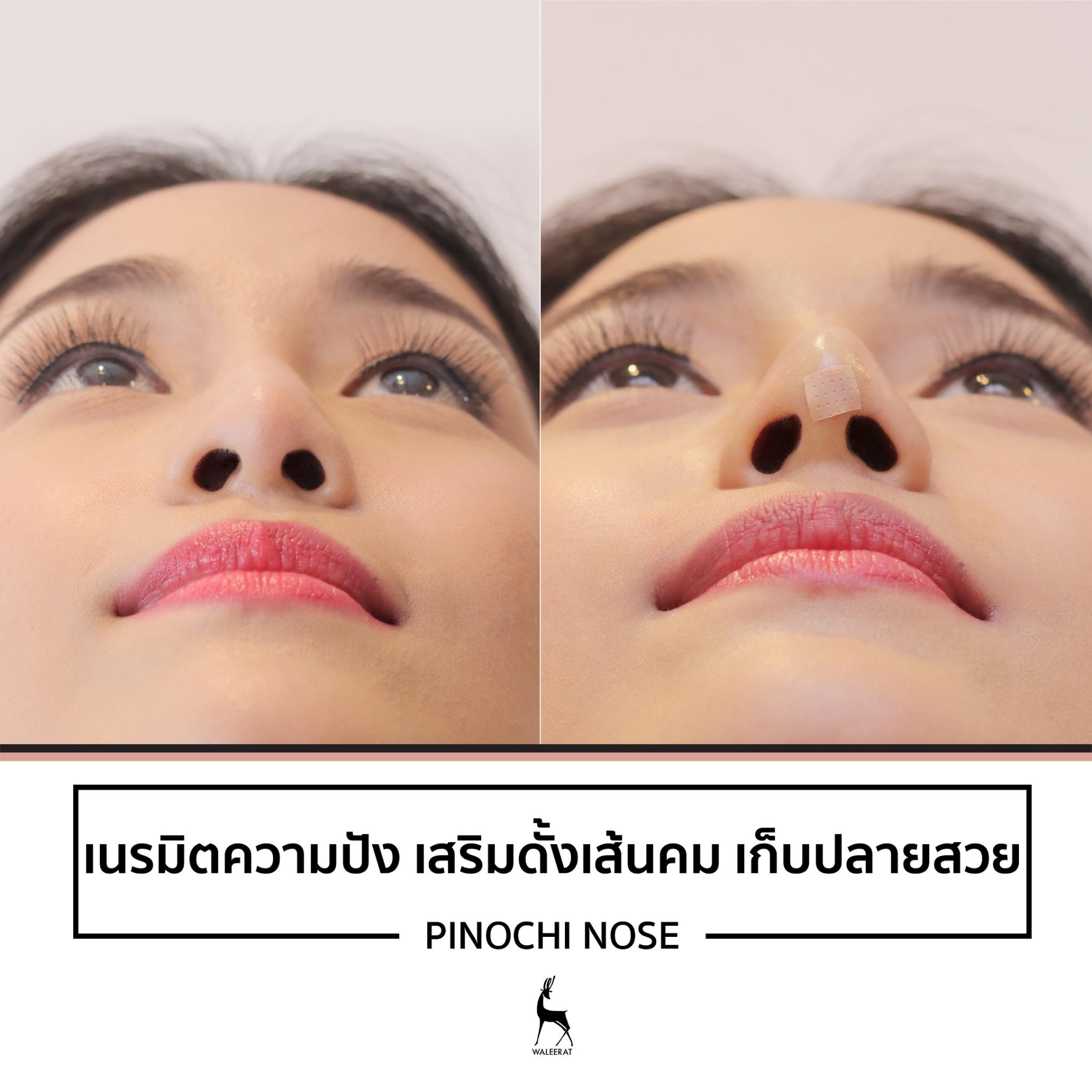 ฉีดไหม Pinochi nose