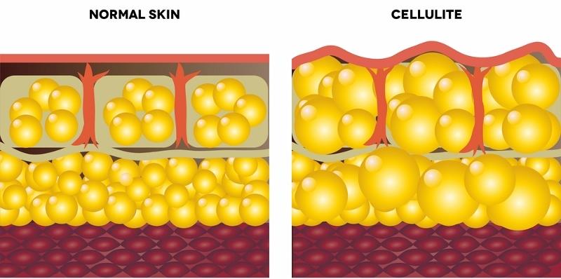 เซลล์ลูไลท์