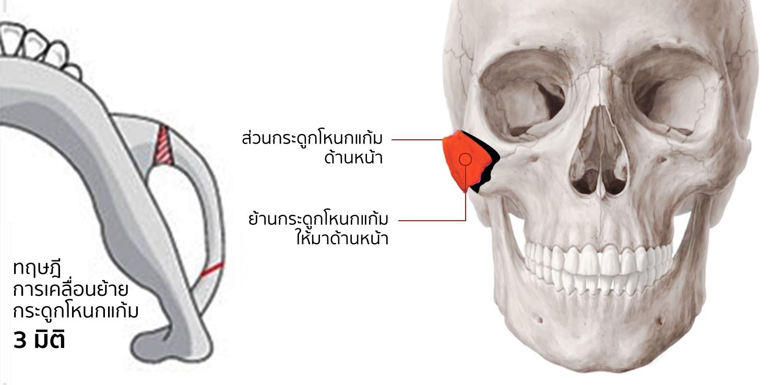 การสลับที่ของกระดูกโหนกแก้มแบบ 3 มิติ
