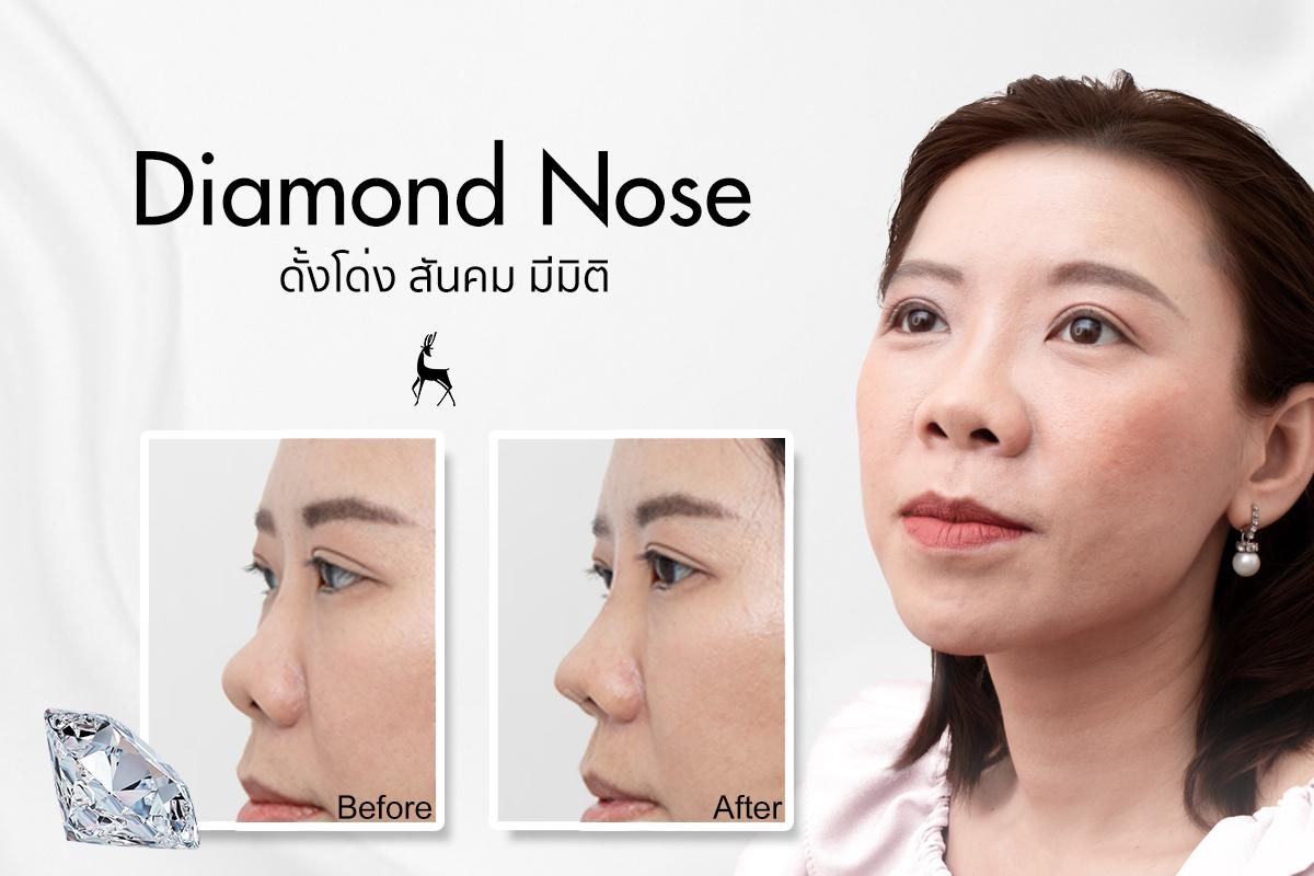 Diamond nose 07.jpg