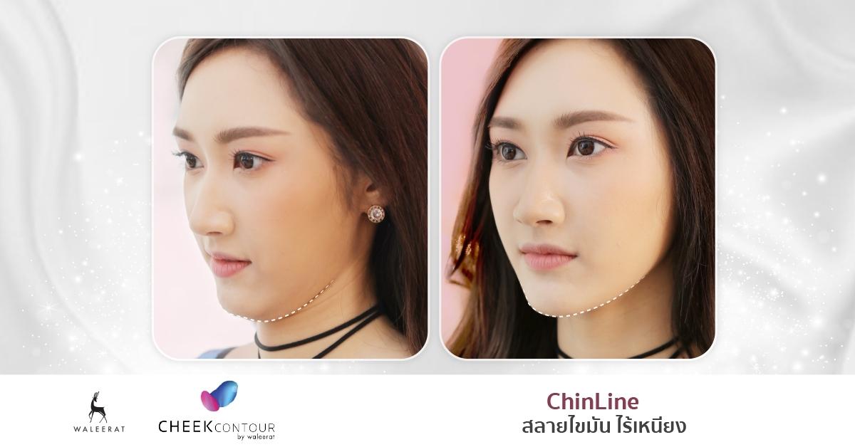Cheek Contour - ChinLine