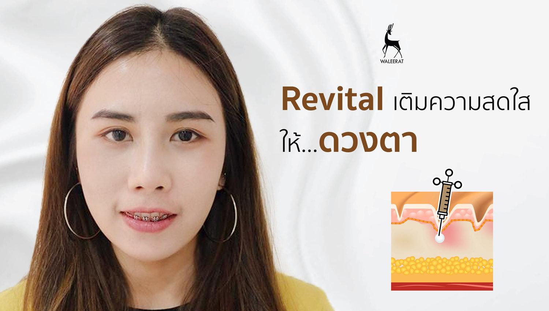 revital+เติมความสดใสให้รอบดวงตา.jpg