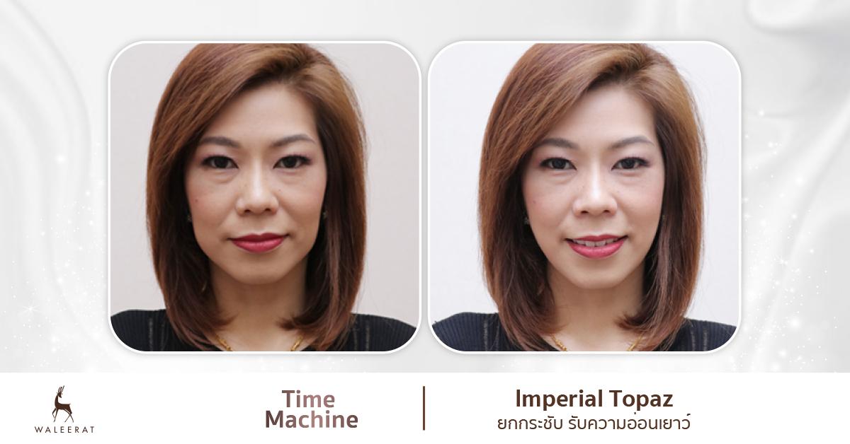Imperial Topaz time machine