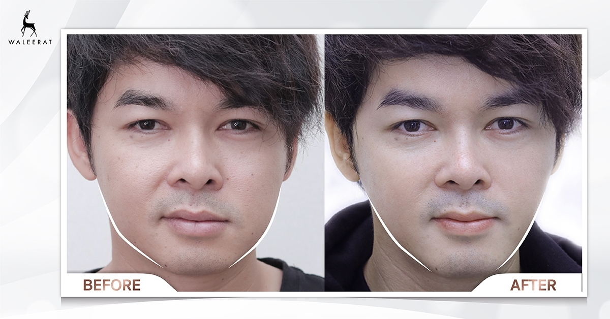 before&after firmface