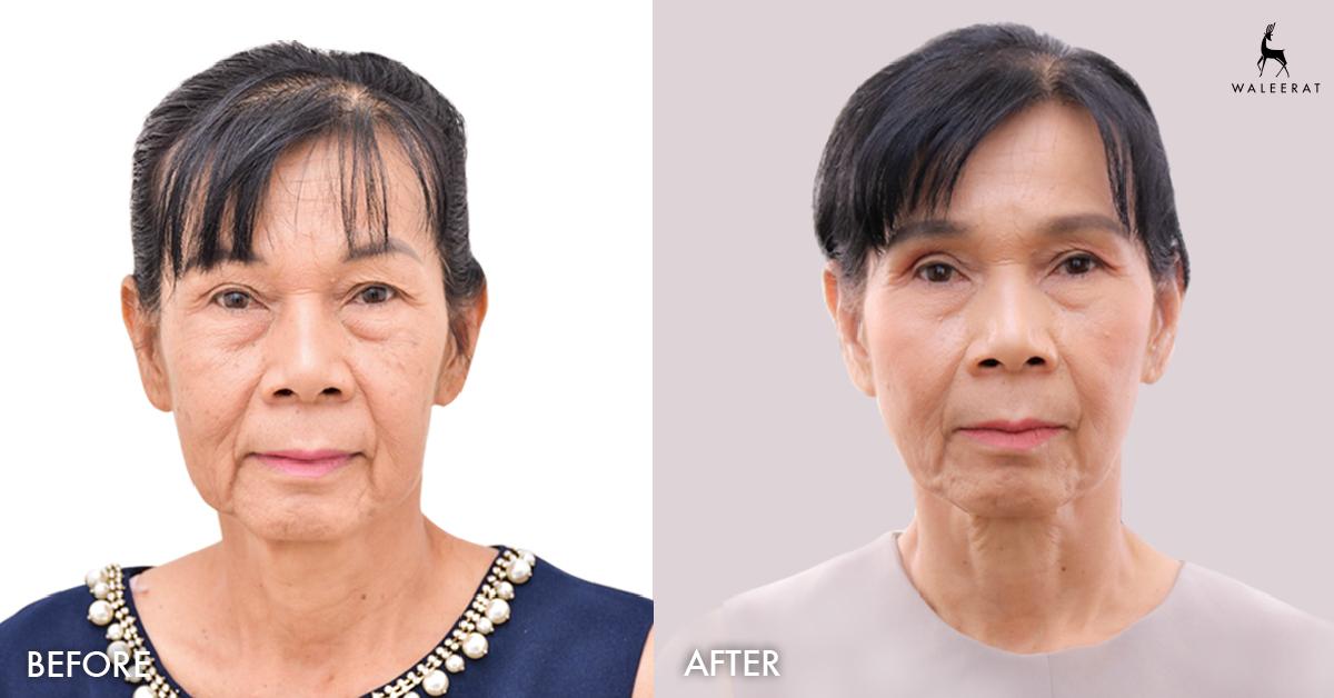 ผิวกระชับ อ่อนวัย แม้วัย 60+  ก่อน-หลัง