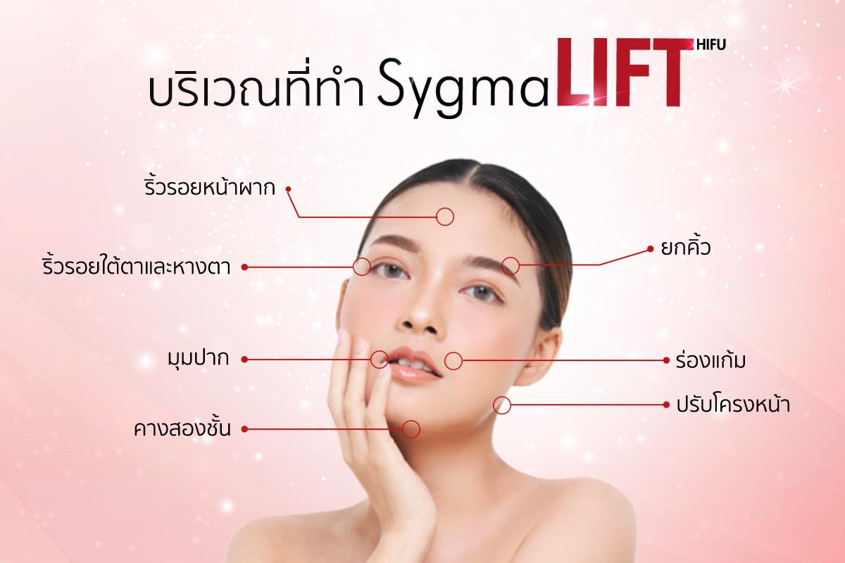 บริเวณที่ทำ Sygmalift