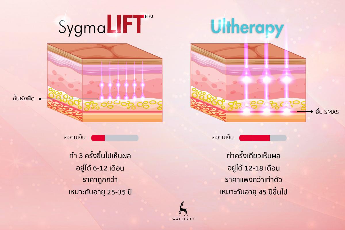 Sygmalift VS Ulthera