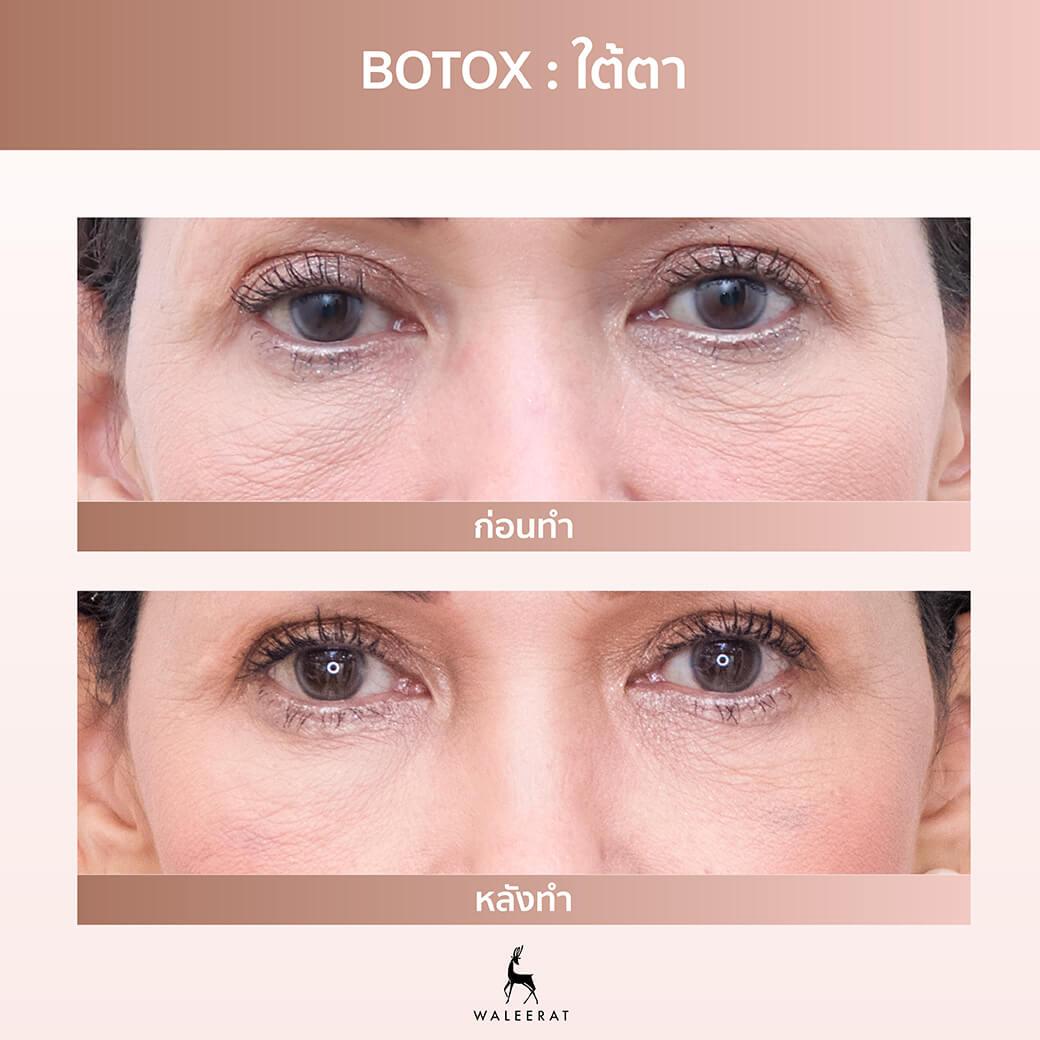 Botox ใต้ตา