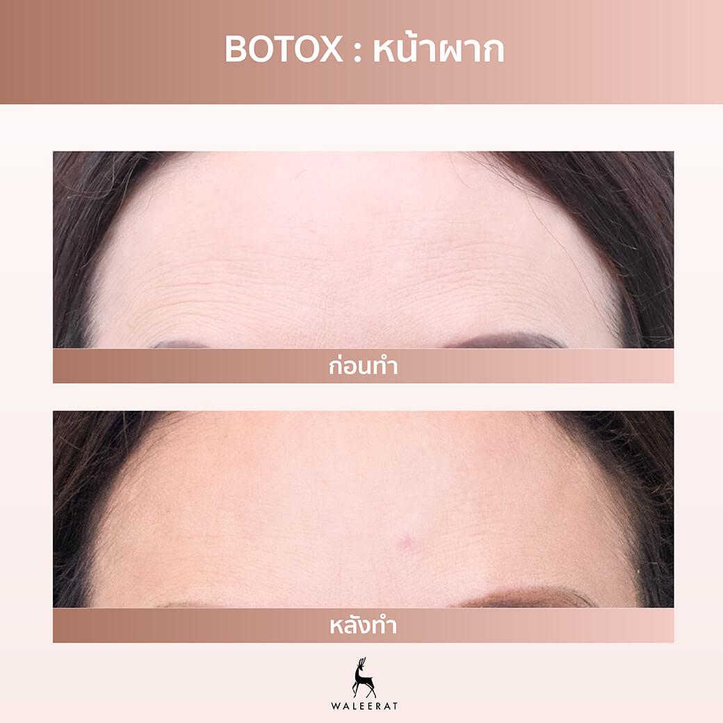 Botox หน้าผาก