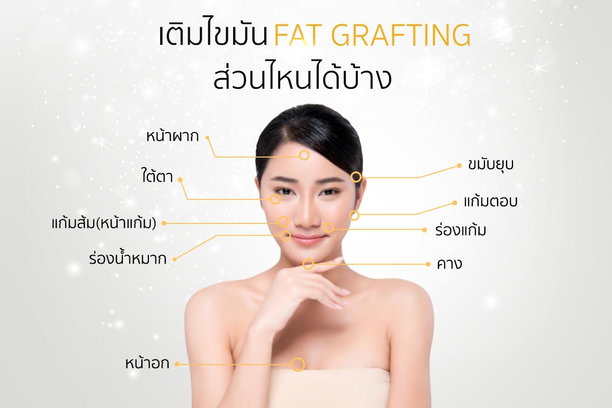 เติมไขมัน fat graft เติมส่วนไหนได้บ้าง