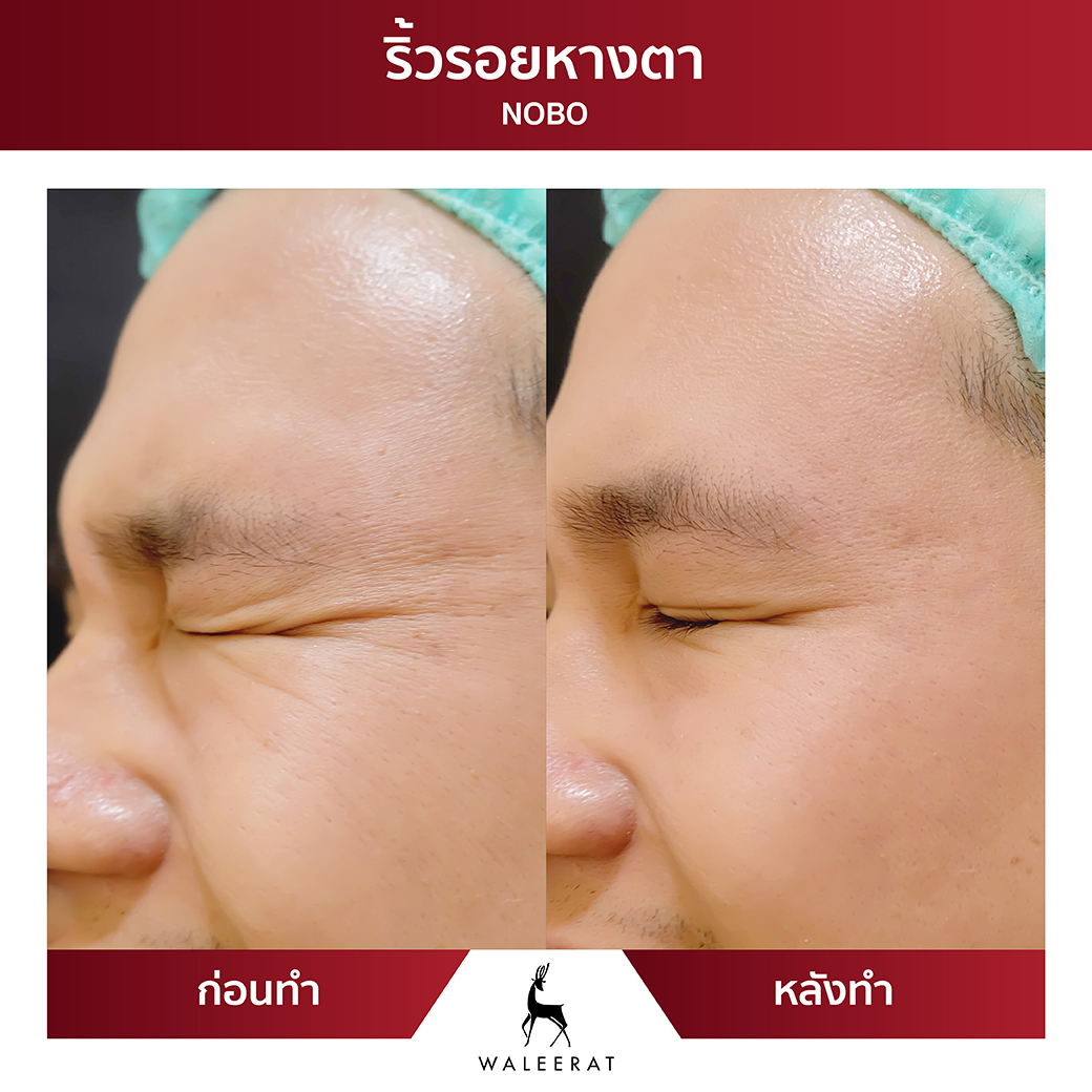 Before After_คุณใหม่