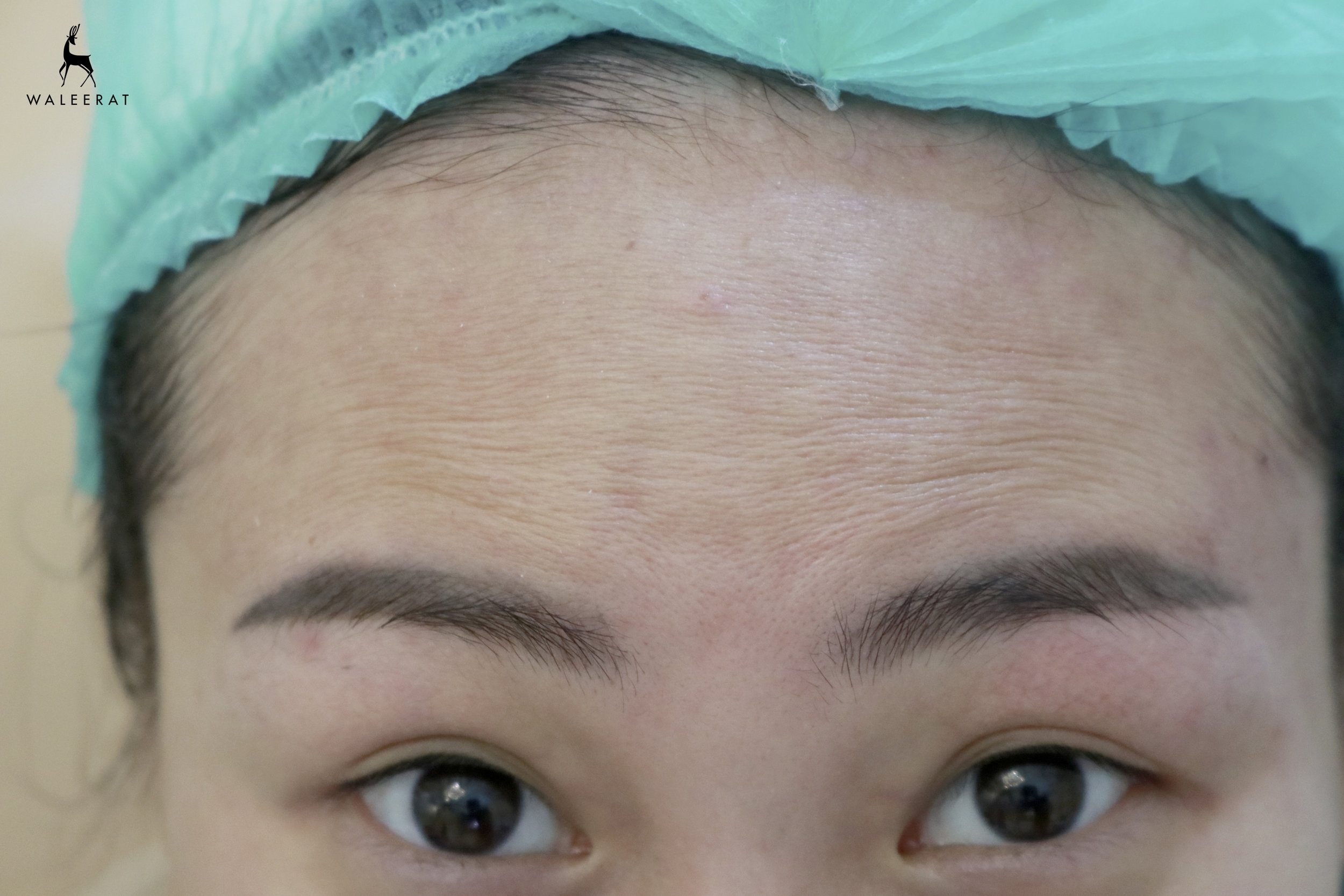 mild forehead age aging.jpg