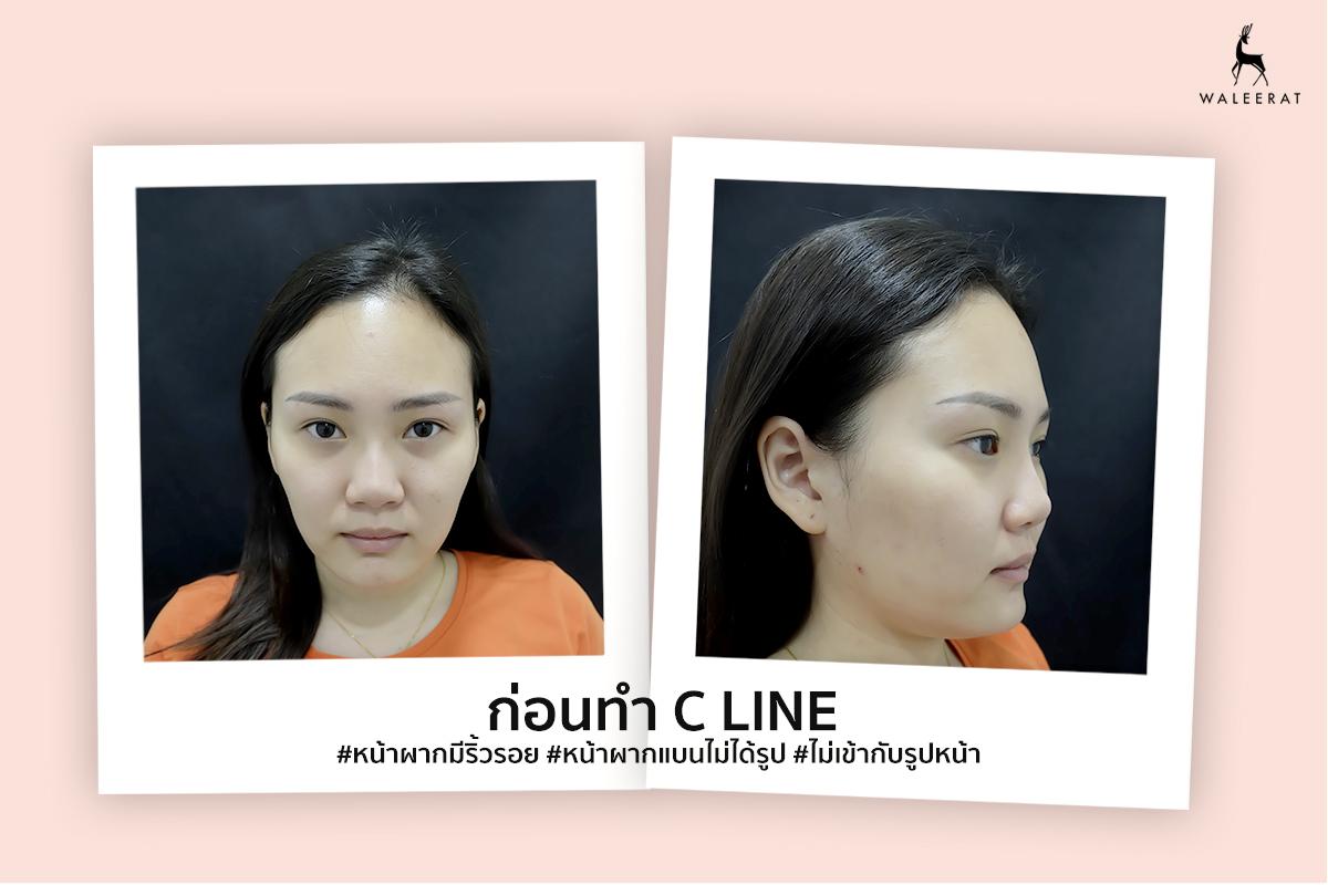 before c line พี่มาย.jpg