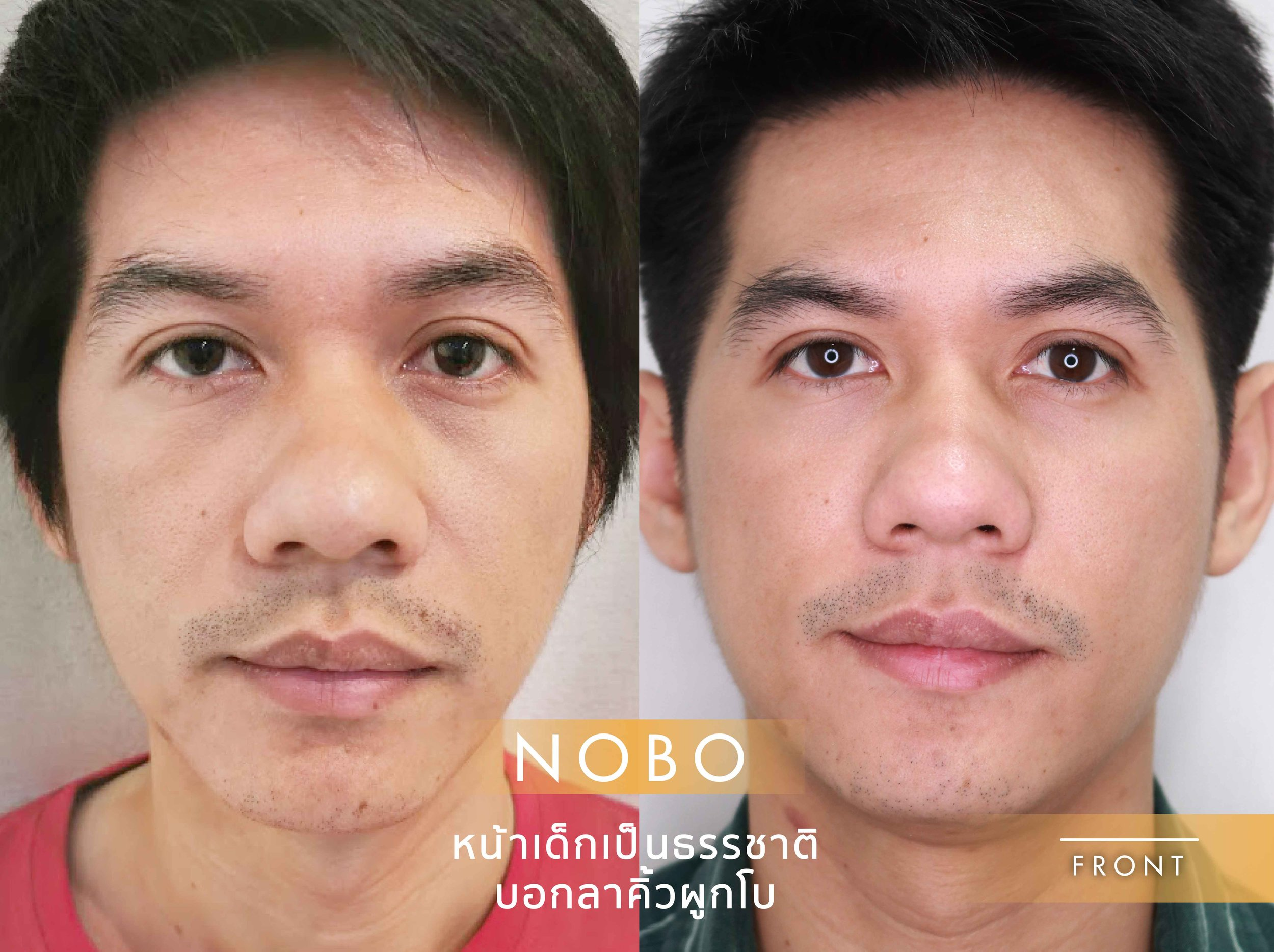 Before & After NOBO