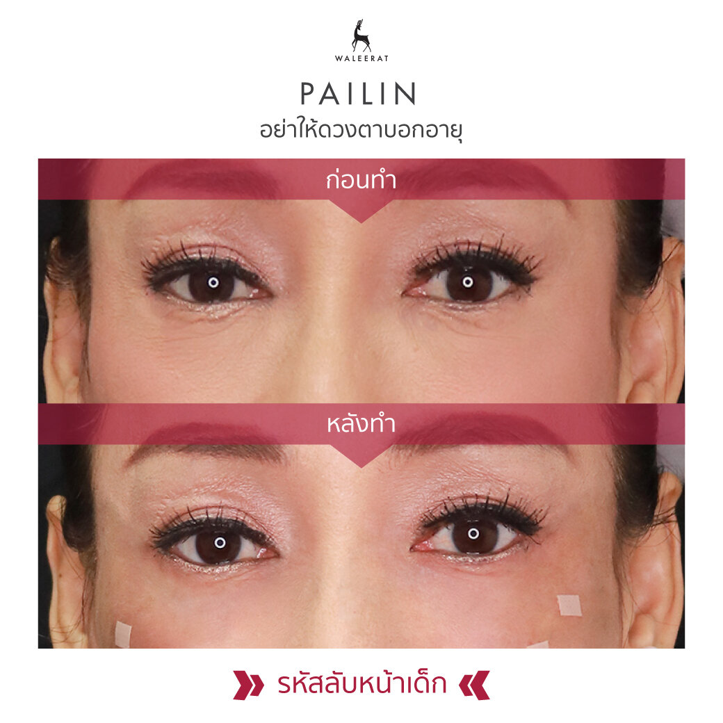 Review_พี่จุ้บแจง-Palin-1040x1040.jpg