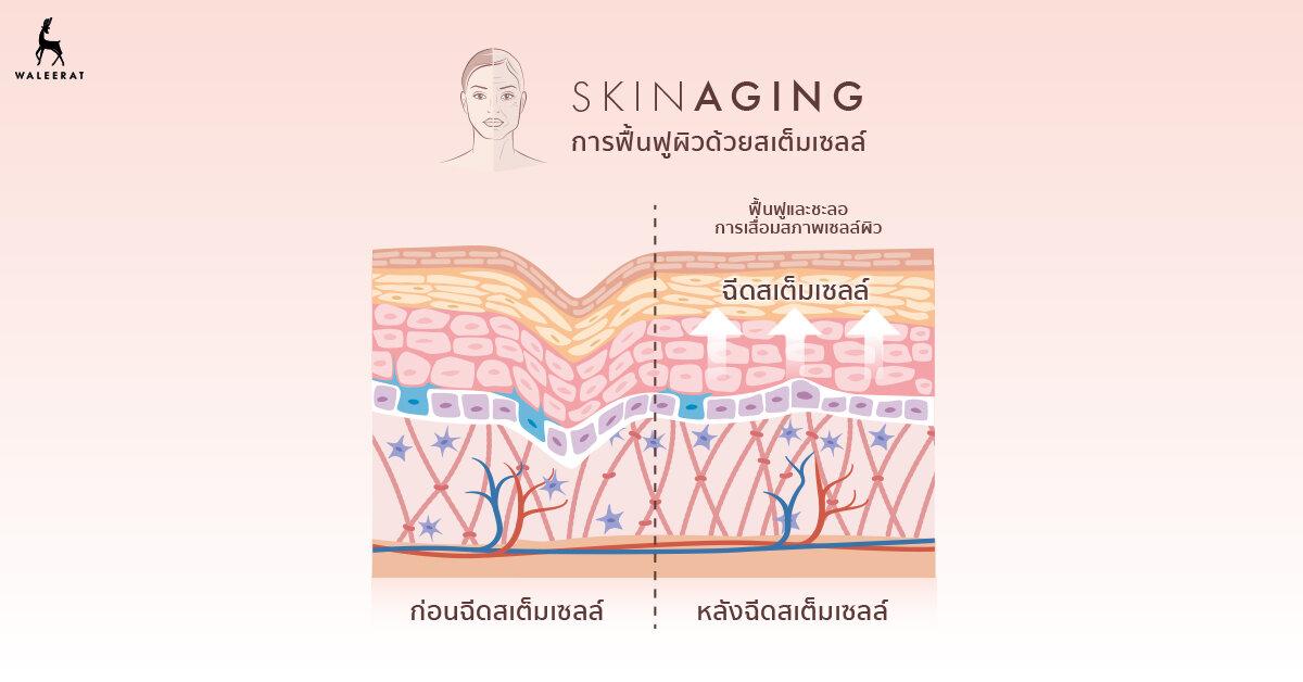 Stem+Cell+info+01