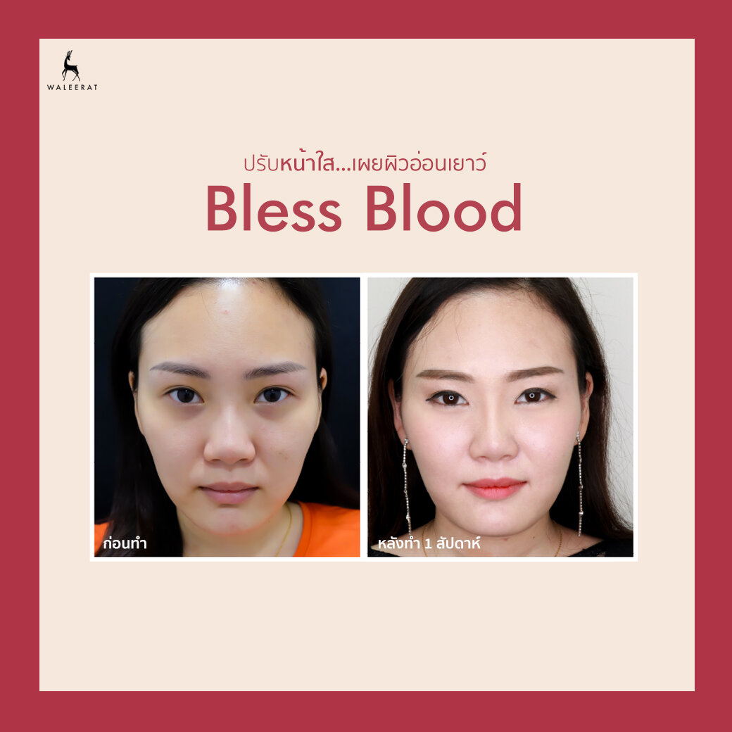 1040x1040-BEFORE AFTER Bless Blood พี่มาย.jpg