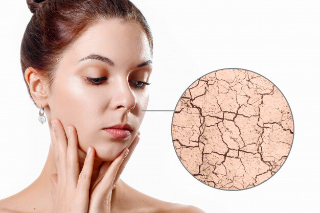 dry facial skin moistening young girl beauty?format=original