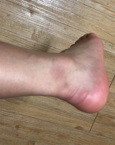 My foot the day after I accidentally fell wrong from a petit allegro jump.