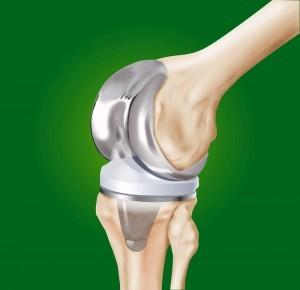 1. knee replacement.jpg