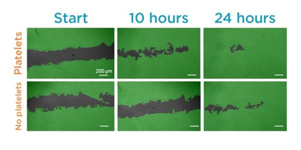 platelet-rich-bio-ink-could-boost-healing-of-3d-printed-tissue-implants-and-skin-grafts-allevi