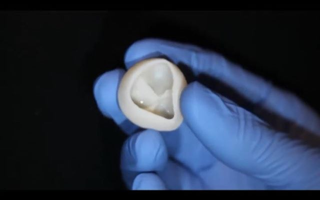 Congratulations to our partners at FluidForm on their amazing new publication in @ScienceMagazine wherein they successfully #3d #bioprint a #human #heart scaffold using their #FRESH method and #collagen from Advanced BioMatrix. This is a crucial step towards the future of custom, patient-specific 3D #bioprinted replacement organs, valves, ventricles, and tissues. We're proud to partner with these groundbreaking companies to make technology and techniques like these accessible to the larger #tissue #engineering community. Check out the videos of their #bioprinted #heart #valve above and then click the link in bio to see more of their amazing work.