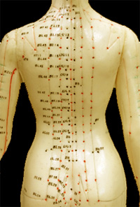 Spinal acupuncture back treatment of ailments like back pain,, sciatica,  bulging and ruptured disks, neck pain, arthritic spine