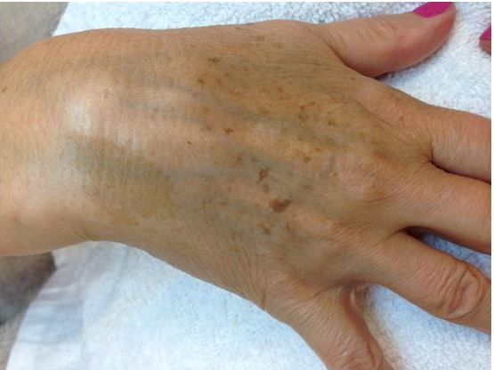 Client's hands before IPL treatment